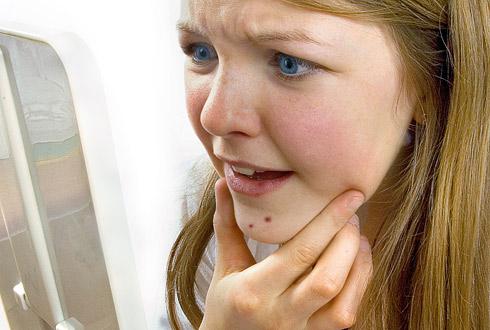 как избавиться от угрей на лице подростку 11 лет